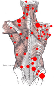 myofascial-pain-syndrome-10026_0